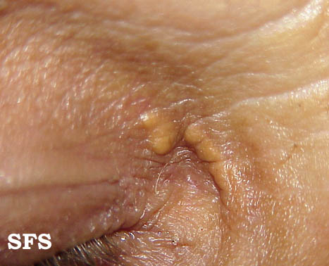 xanthelasma palpebrarum