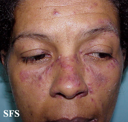 lupus erythematosus-subacute cutaneous lupus erythematosus(lupus_erythematosus-subacute_cutaneous_lupus_erythematosus1.jpg)