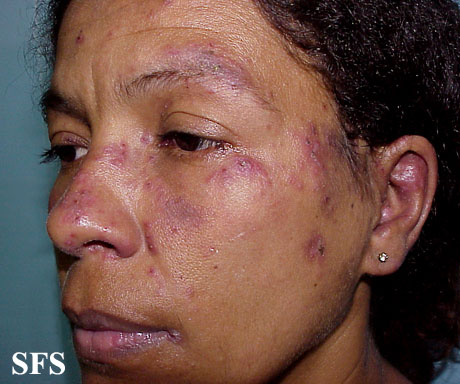 lupus erythematosus-subacute cutaneous lupus erythematosus(lupus_erythematosus-subacute_cutaneous_lupus_erythematosus2.jpg)