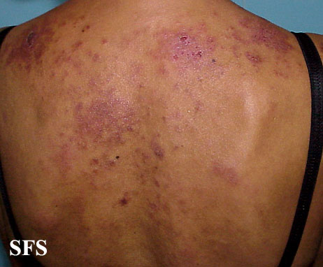 lupus erythematosus-subacute cutaneous lupus erythematosus(lupus_erythematosus-subacute_cutaneous_lupus_erythematosus4.jpg)