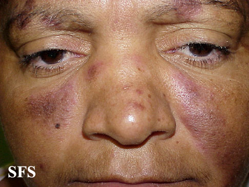lupus erythematosus-subacute cutaneous lupus erythematosus(lupus_erythematosus-subacute_cutaneous_lupus_erythematosus5.jpg)
