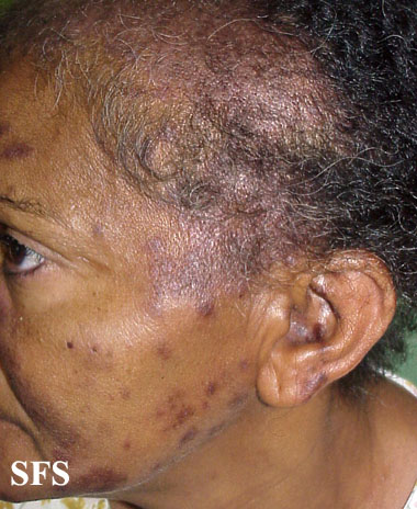 lupus erythematosus-subacute cutaneous lupus erythematosus(lupus_erythematosus-subacute_cutaneous_lupus_erythematosus8.jpg)