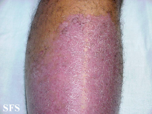 psoriasis-psoriasis after erysipelas
