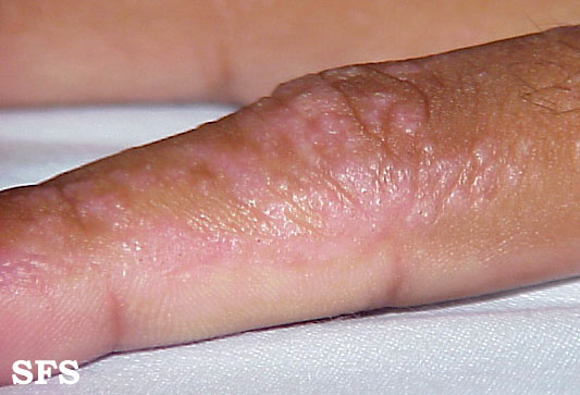 inflammatory linear verrucous epidermal naevi(inflammatory_linear_verrucous_epidermal_naevi3.jpg)