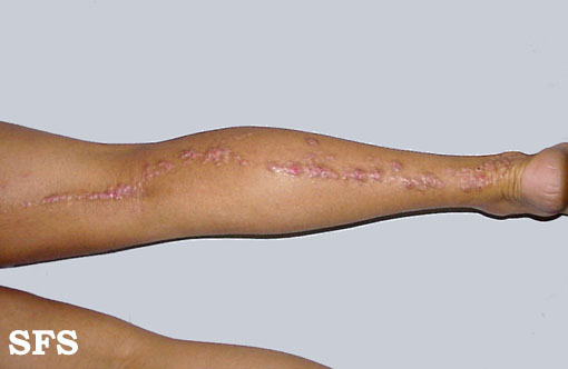 inflammatory linear verrucous epidermal naevi(inflammatory_linear_verrucous_epidermal_naevi11.jpg)