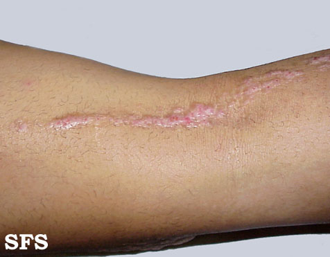 inflammatory linear verrucous epidermal naevi(inflammatory_linear_verrucous_epidermal_naevi12.jpg)