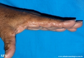 marginal keratoderma of the palms