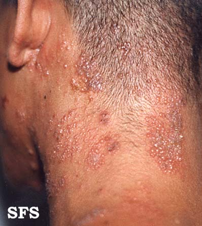 herpes zoster(herpes_zoster7.jpg)