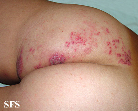 herpes zoster(herpes_zoster21.jpg)