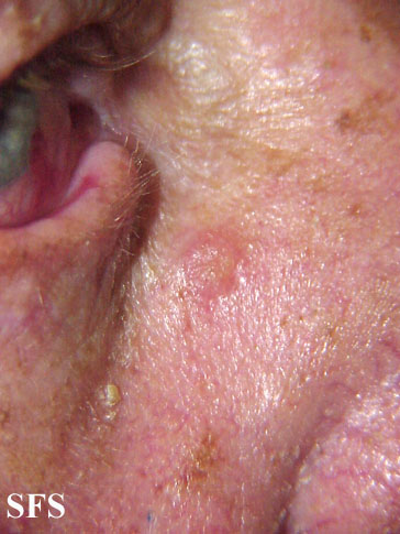 inverted follicular keratosis(inverted_follicular_keratosis1.jpg)