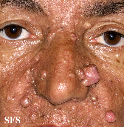 nevoid basal cell carcinoma syndrome(nevoid_basal_cell_carcinoma_syndrome13.jpg)