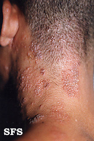 herpes zoster(herpes_zoster6.jpg)