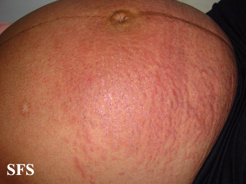 pruritic urticarial papules and plaques of pregnancy