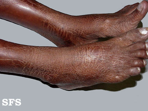 ichthyosis-acquired ichthyosis-clofazimine(ichthyosis-acquired_ichthyosis-clofazimine3.jpg)
