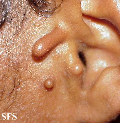 accessory tragus - Pictures