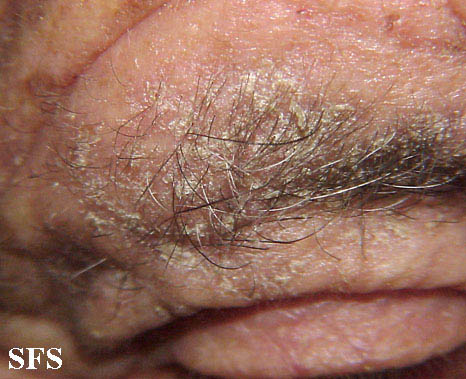 Uncrusted Scabies
